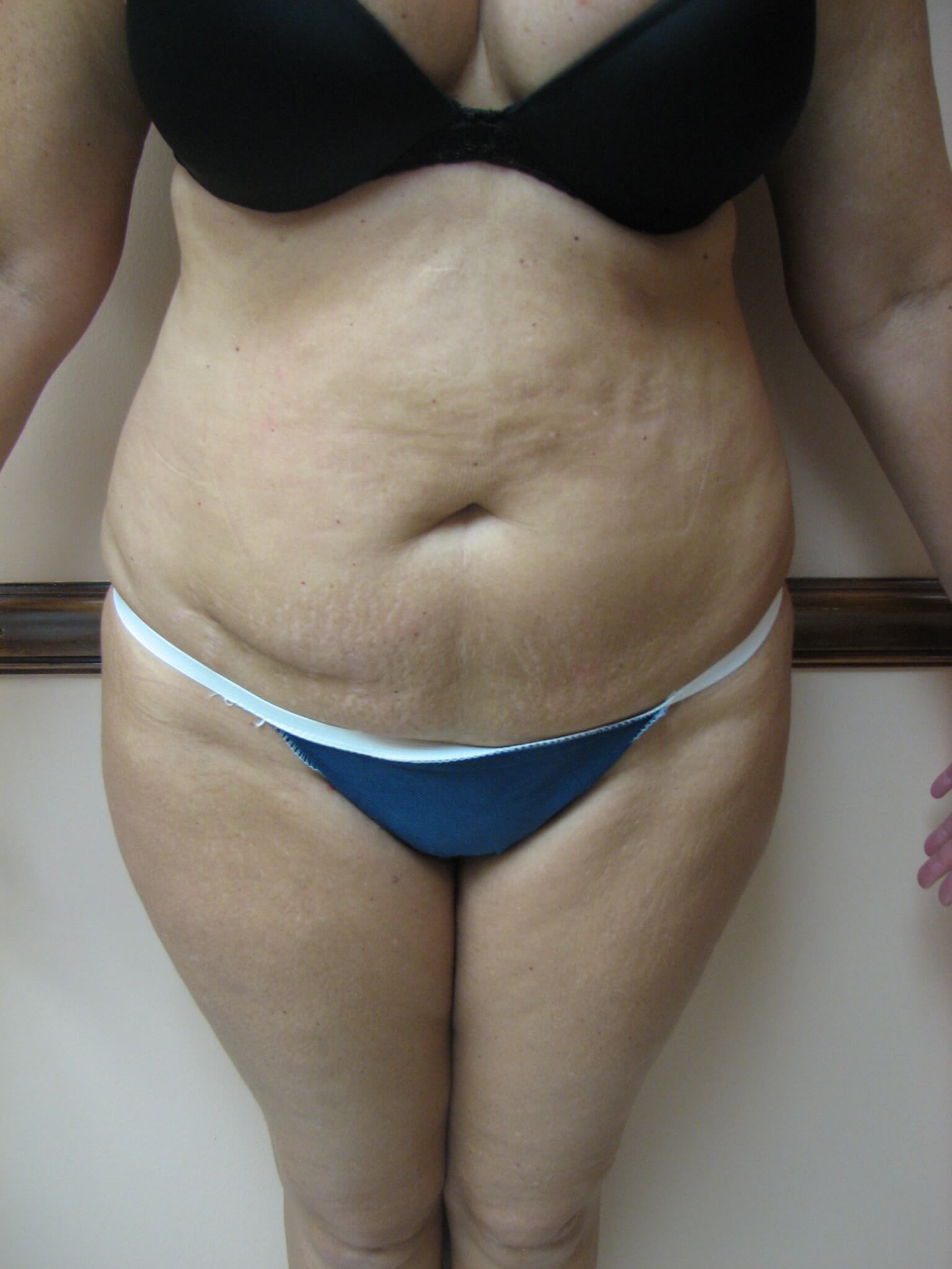 Tummy Tuck Jacksonville Fl Frontal Before Photo Plastic Surgery