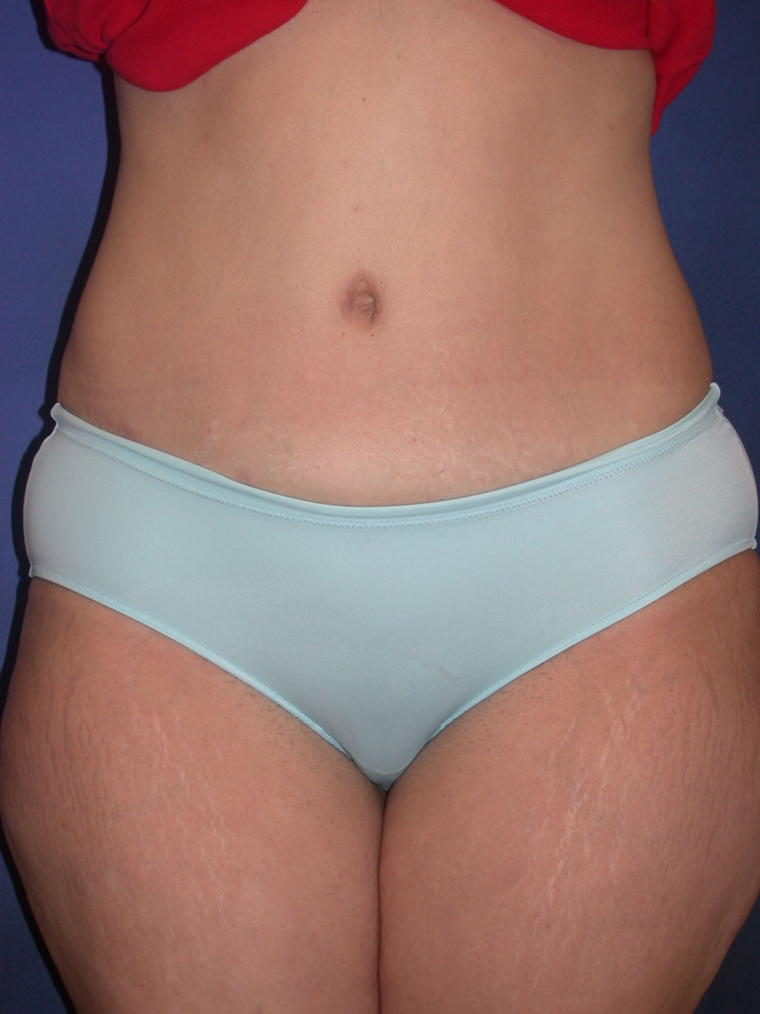 Tummy Tuck Orange Park Fl Frontal After Photo Plastic Surgery
