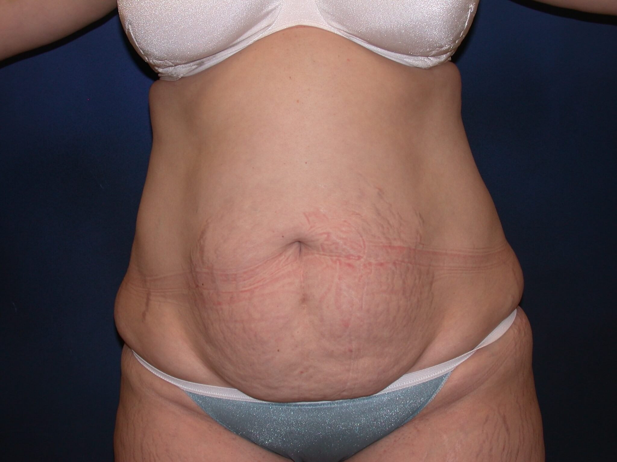Tummy Tuck Orange Park Fl Frontal Before Photo Plastic Surgery