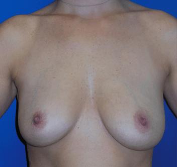 perfect huhe tits