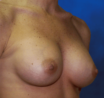 augmentation breast fl jacksonville