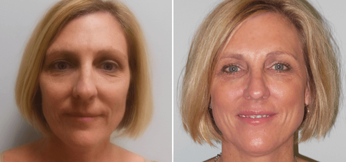 Facial plastic surgery neptune beach fl