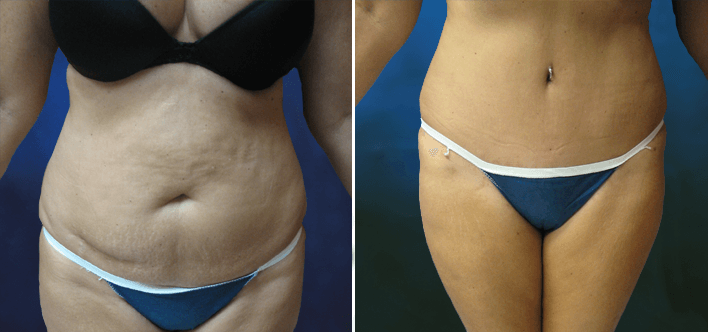 Tummy Tuck Jacksonville Fl Before After Plastic Surgery