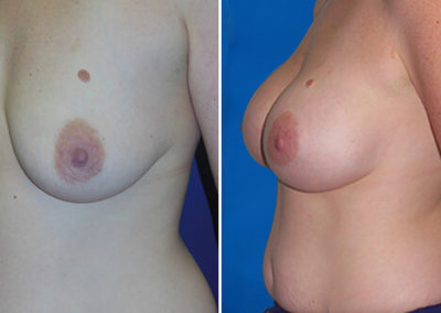 01-breast-augmentation-before-after-atlantic-beach