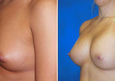 02-breast-augmentation-before-after-atlantic-beach-fl