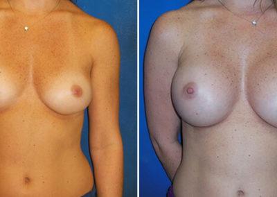 03-breast-augmentation-before-after-fernandina-beach