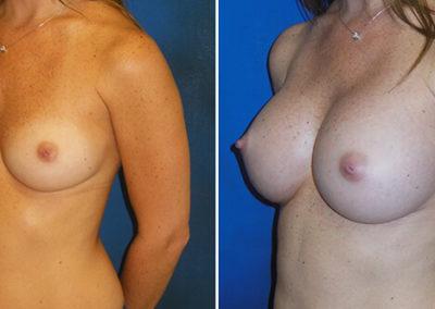 04-breast-augmentation-before-after-fernandina-beach-fl