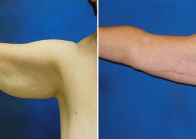 Arm-Lift-Before-and-After-3