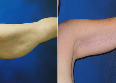 Arm-Lift-Before-and-After-4
