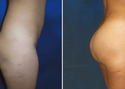 Brazilian-Butt-Lift-Before-After