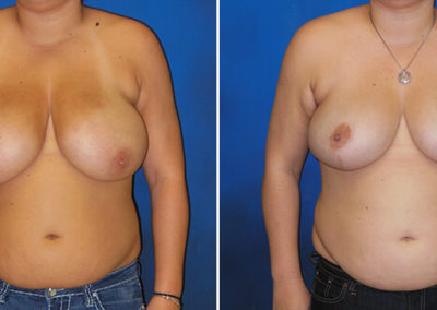 Breast-Lift-Before-and-After-1