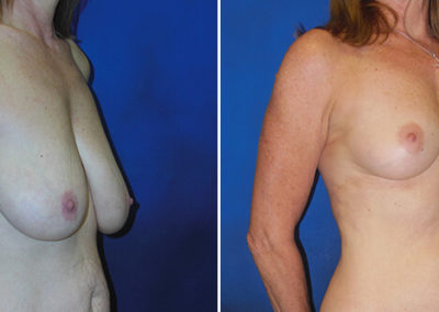 Breast-Lift-Before-and-After-2