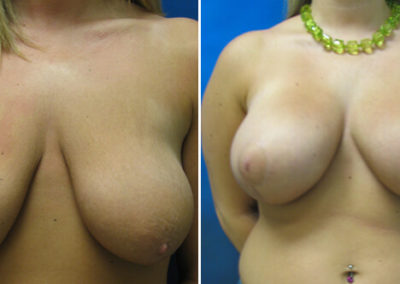 Breast-Lift-Before-and-After-6