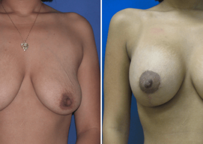 Breast-Lift-Before-and-After-7