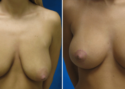 Breast-Lift-Before-and-After-9