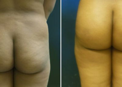 Butt-Lift-Before-and-After_1