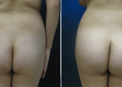 Butt-Lift-Before-and-After_3