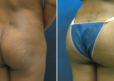 Butt-Lift-Before-and-After_4