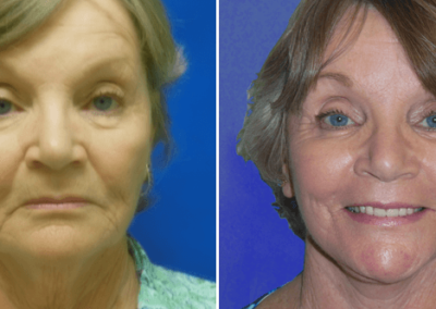 Face-Lift-Before-After-1