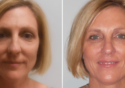 Face-Lift-Before-After-2