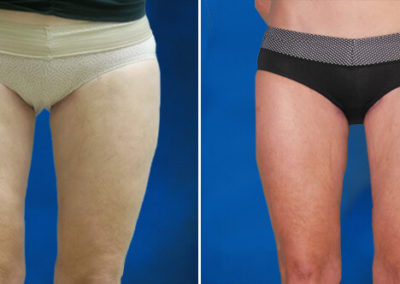 Thighplasty-Before-and-After-1