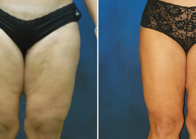 Thighplasty-Before-and-After-2