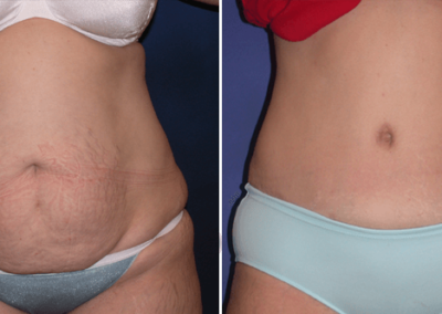 Tummy-Tuck-Ponte-Vedra-Beach-FL-Before-After
