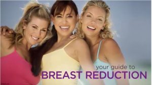 Breast Reduction Guide by Eric Weiss MD Jacksonville Florida
