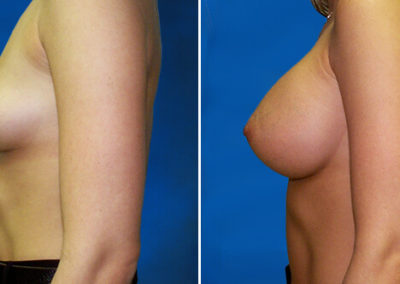 05-breast-augmentation-before-after-jacksonville