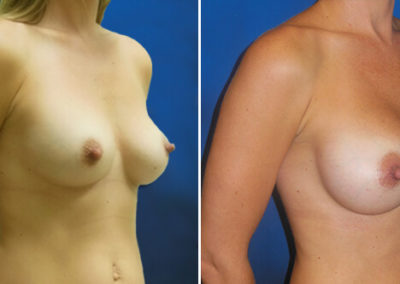 06-breast-augmentation-before-after-jacksonville-beach