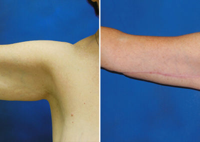 Arm-Lift-Before-and-After-1