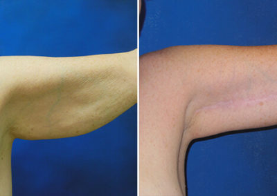 Arm-Lift-Before-and-After-2