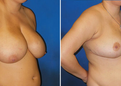 Breast-Lift-Before-and-After-3