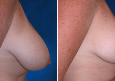 Breast-Lift-Before-and-After-4