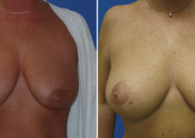 Breast-Lift-Before-and-After-5
