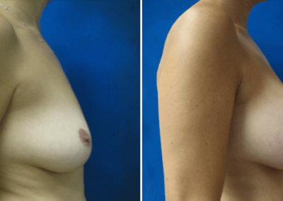 Breast-Lift-Before-and-After-8