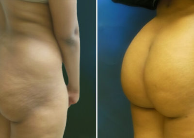 Butt-Lift-Before-and-After_2