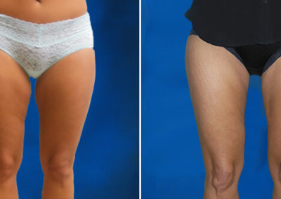 Thighplasty-Before-and-After-3