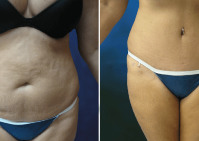 Tummy-Tuck-Jacksonville-FL-Before-After